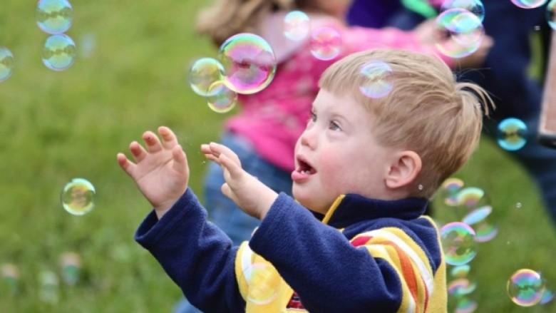 Rimbursim për fëmijët  Down   pas 8 vitesh miratohet vendimi për analizën e kushtueshme