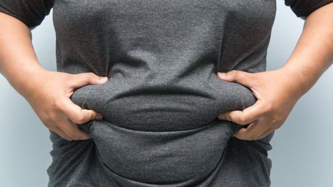 Obeziteti mund të shkaktojë kancer  zbulohet arsyeja